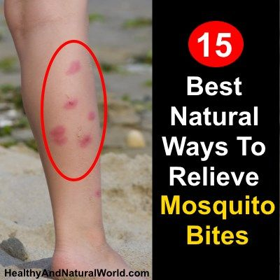 15 Best Natural Ways To Relieve Mosquito Bites      (Im going to have to try these, Mosquitos LOVE me, so I get bit ALOT ! )