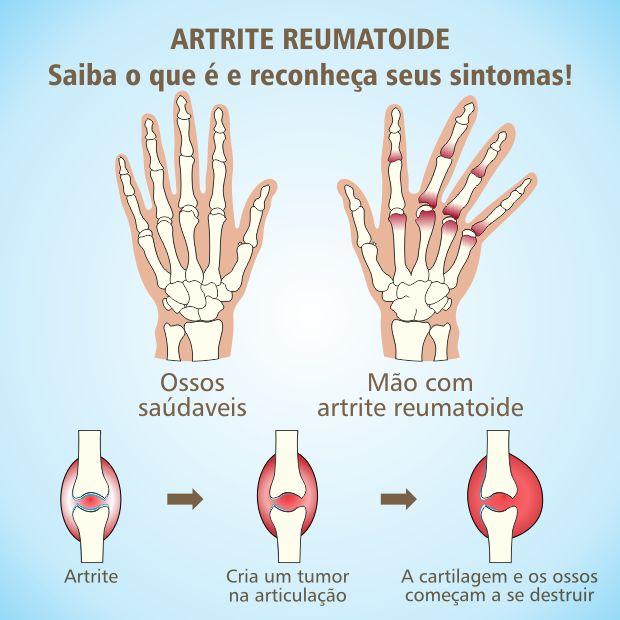A Artrite reumatóide (AR) é uma doença que pode nos acometer em qualquer idade, mas mais comum em pessoas mais velhas, e com certeza você já...