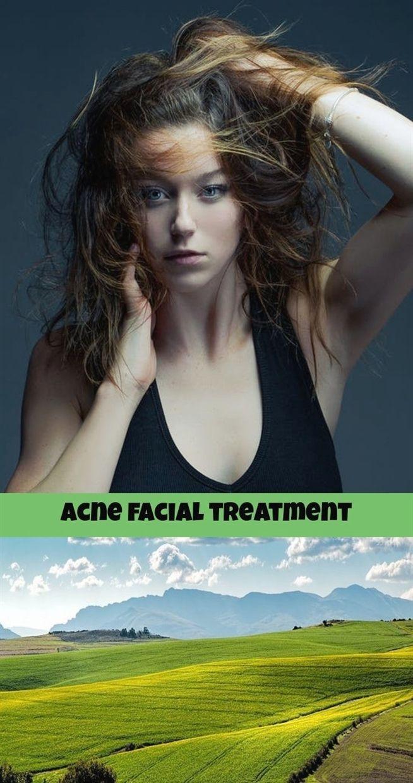 acne facial treatment_241_20180907025208_64 cystic #acne 5 dpo bfp