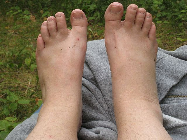 All kinds of injuries can occur in the outdoors, many of which you may be able to handle on your own. Here's how to treat a sprained ankle on the trail. http://sunnyscope.com/sprained-ankle-on-the-trail/