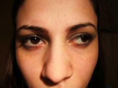 Bilateral Internuclear ophthalmoplegia (INO)