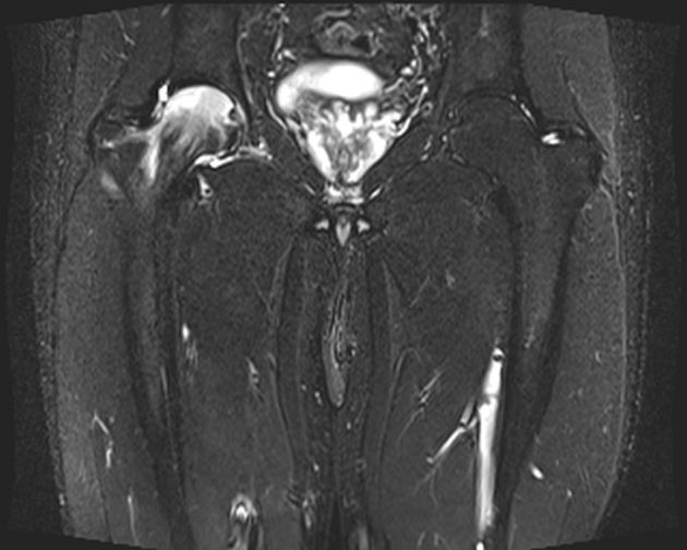 Idiopathic transient osteoporosis of the hip (ITOH) is a self limiting entity of unknown cause ...