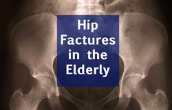 Hip fractures in the elderly are critical ailments, with possible life-endangering complications.