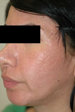 erbium laser resurfacing after photo