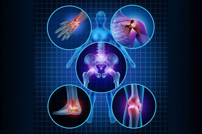Hand and Wrist Arthritis Symptoms -- Click image to review more details.