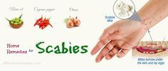 Today's article will reveal top 29 natural home remedies for scabies treatment in humans. Don't skip if you are suffering from scabies.