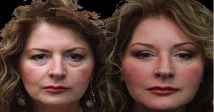 Trápí vás oteklé nebo povislá víčka vytvářející nepěkné kruhy pod očima? Namísto operace zkuste tuto jednoduchou, ale účinnou masku.