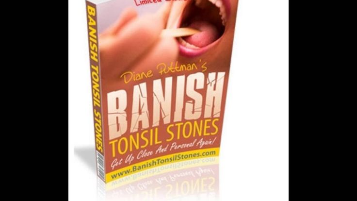 http://ift.tt/2alm6fh : Click Here for Banish Tonsil Stones PDF System Download.  You do NOT have to live on with tonsil stones any further.  Nearly ten years have passed since my amazing discovery. I can honestly and confidently let you know MY TONSIL STONES HAVE NEVER RETURNED!  I created this straightforward guide to get rid of the tonsil stones permanently to spread the saying to the countless people out there who're going through the same misery I did desperately searching for a cure…