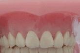 O aparelho ortodôntico totalmente invisível colado por trás dos dentes. O máximo em estética.