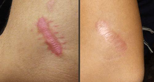 Les chéloïdes sont des lésions de la peau qui se forment à cause d'excroissances du tissu fibreux à la place d'une lésion cutanée.