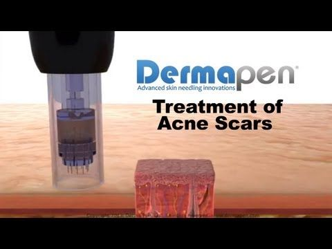 Dermapen Micro Needling Treatment of Acne Scars - Animation by Needlelogics.com -Needlelogics, LLC assists in the didactic and practical instruction of skin micro needling to the cosmetic and aesthetic medical community. PCI (Percutaneous Collagen Induction) or CIT (Collagen Induction Therapy) is prevalent in aesthetic research and Needlelogics,...