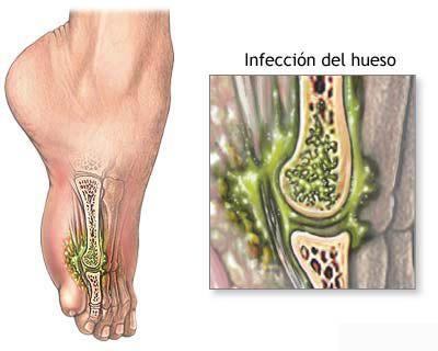 osteomielitis.jpg (400×320)