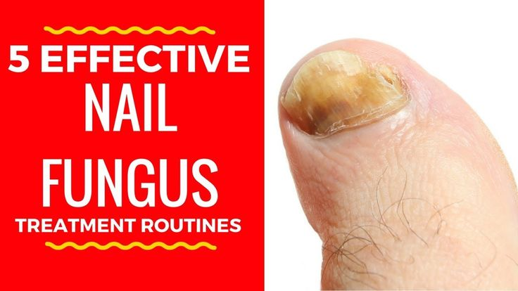 5 Effective Nail Fungus Treatment Routines - Home Remedies for Toenail F...