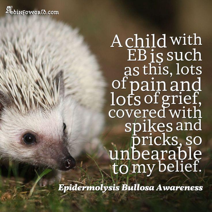 Epidermolysis Bullosa Awareness #EBawareness #fightEB #cure4EB ebinfoworld.com