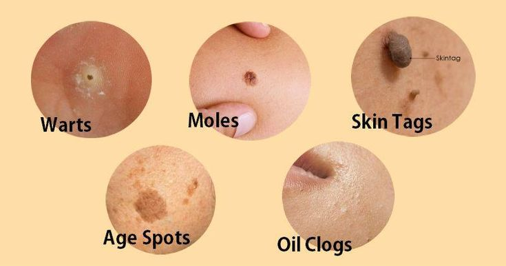 how to remove flat moles from face permanently