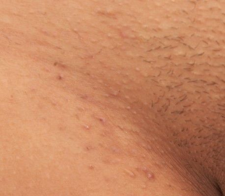 1000 images about ingrown hair removal treatment in