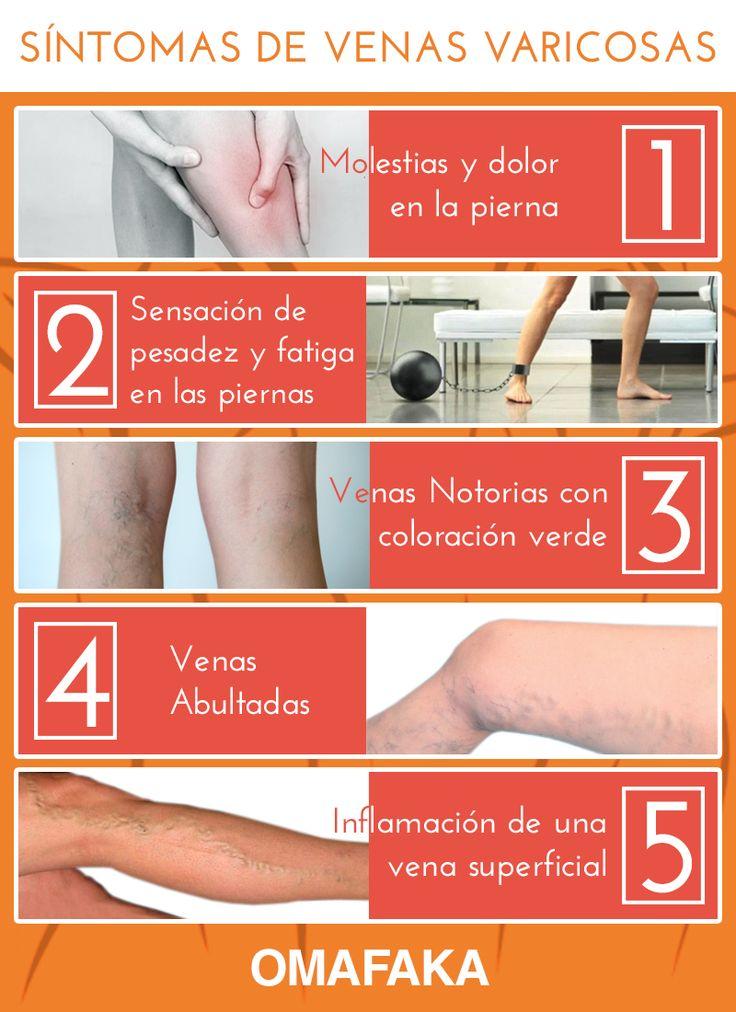 SÍNTOMAS DE VENAS VARICOSAS: OMAFAKA te ayuda de detectar a tiempo el problema de las venas varicosas, no descartes estos síntomas y previene este molesto mal. #Venas #varices #síntomas #Dolor #piernas #arañitas #arañas #piernaslindas #caminar #cansancio #salud #educación #omafaka