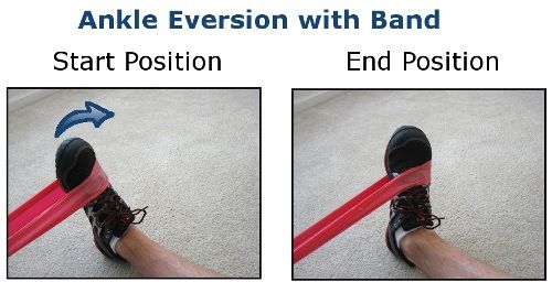 One Of The Ways To Control Excessive Pronation Is By