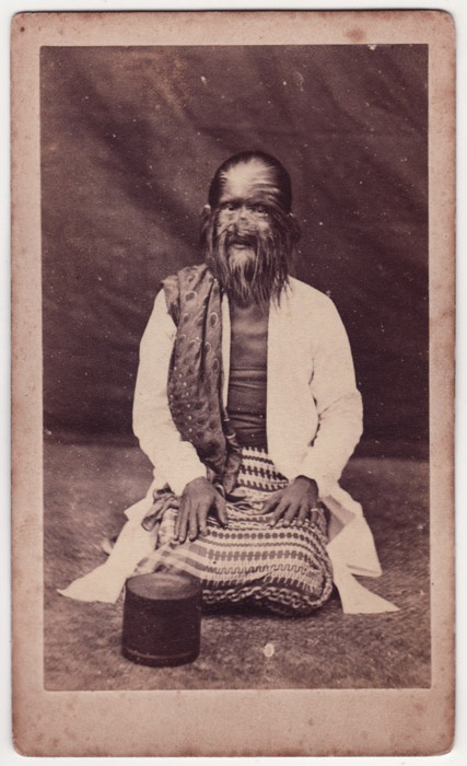 CDV- human oddity THE HAIRY FAMILY OF BURMA – MOTHER [Barnum]