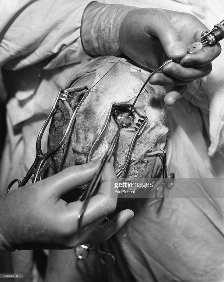 One of the earliest types of lobotomy/leucotomy in which burr holes are drilled in either side of the skull. An unidentified surgeon cuts dura mater away from an exposed brain.