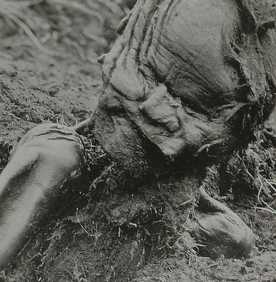 Grauballe Man Still Partially Interred in Peat
