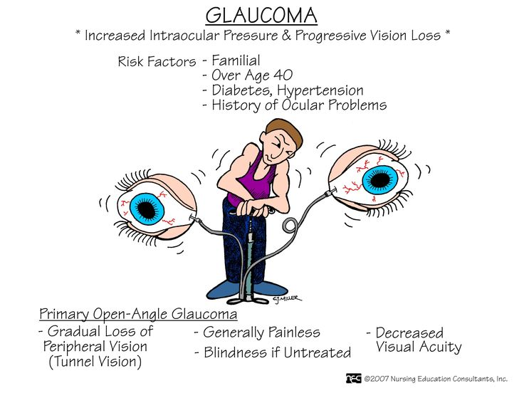 Glaucoma Glaucoma is a disease that is often associated with elevated intraocular pressure, in which damage to the eye (optic) nerve can lead to loss of vision and even blindness.
