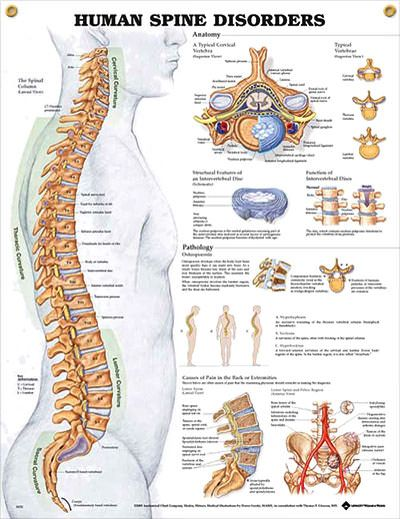 Human Spine Disorders anatomy poster shows location of atlas and axis, cervical, thoracic and lumbar vertebrae, sacrum and coccyx. Skeletal system chart for doctors and nurses.