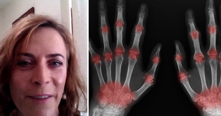 This rheumatoid arthritis remedy focus on factors that most doctors would ignore! Find out how you can BEAT arthritis for good!