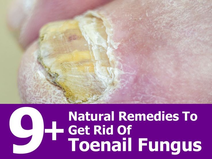 Toenail fungus is a common issue that affects up to 10 percent of American adults. It can be resistant to treatments, but there are home remedies that can banish this fungus forever and prevent it from occurring again in the future. When you have a toenail fungus, the affected nails appear thick and yellow. As …