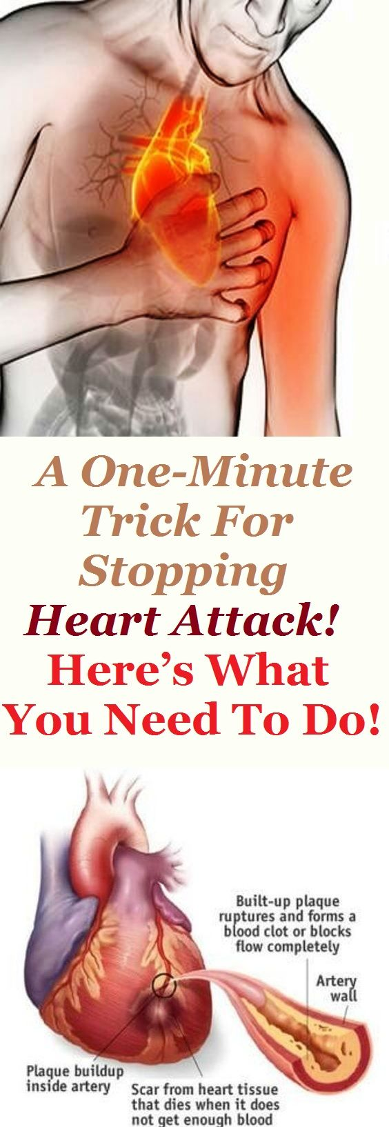 A One-Minute Trick For Stopping Heart Attack! Here's What You Need To Do!