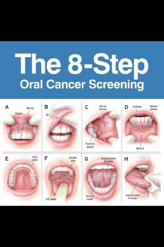 The 8-Step. Oral Cancer. http://www.rockycreekdentalcare.com