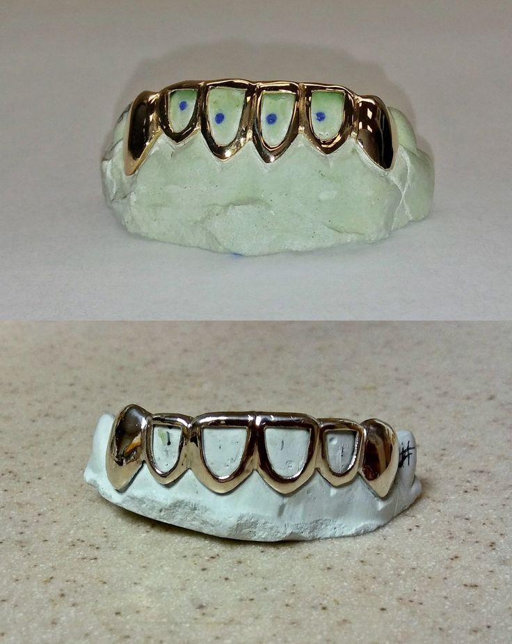 Grillz Dental Grills 152808: S. Silver 10K Or 14K Solid Gold Custom 4 Open-Cut Diamond Cut Grill Grillz BUY IT NOW ONLY: $105.0