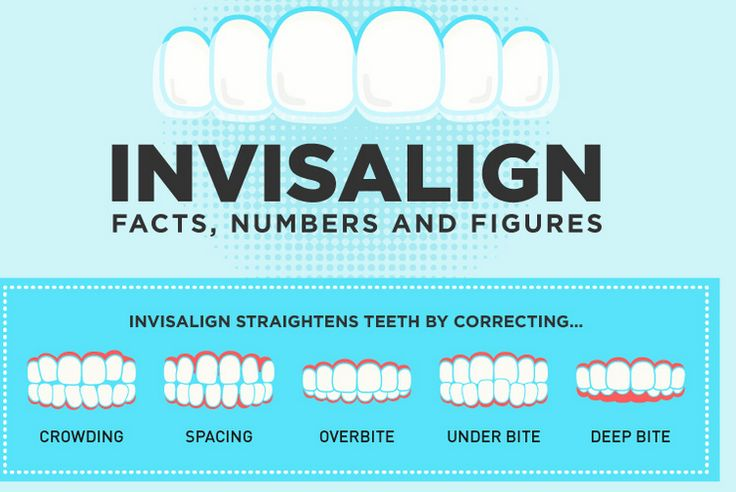 Fix overbite, underbite, and spacing issues with Invisalign Clear Braces in Los Angeles with Dr. Dean Salo.