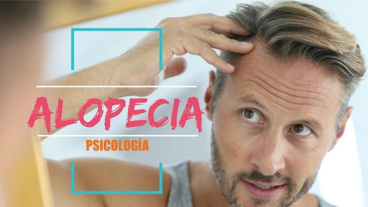 Liked on YouTube: La Alopecia y La Psicología | PSICOLOGIA VISUAL