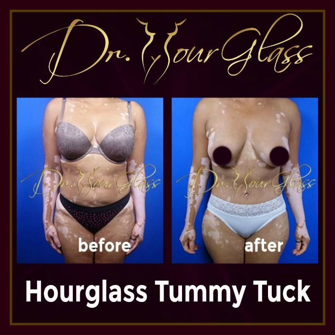 The Hourglass Tummy Tuck procedure by Dr. Hourglass is a one of a kind method to make your abdomen flat and firm. Also it involves liposuction in multiple areas of your body in order to reshape your body into an hourglass shape which will make you look very sexy and appealing.