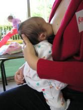 How to breastfeed a baby with hip dysplasia (leg bone not properly in the hip socket).