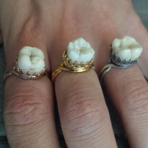 Findings for these are back in stock! At the moment they are made to order with a 3-5 day turnaround and cavity free teeth only! A real human