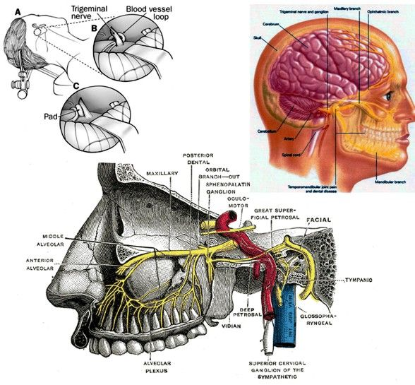 trigeminal neuralgia | Trigeminal Neuralgia : Definition, Causes, Symptoms, Diagnosis and ...