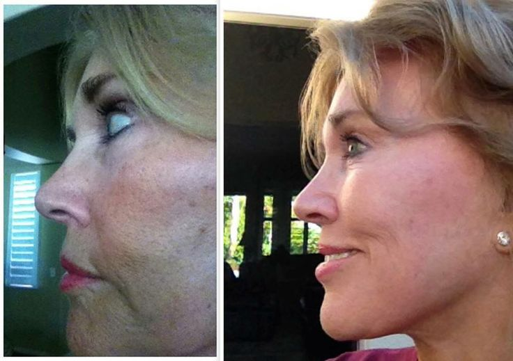 """Golf season is once again in full swing in the desert. And with it comes the potential for sun damage. But I'm personally saying goodbye to sun damaged skin with R+F's REVERSE. In 4 months of use, it worked it's magic on my blotchy skin!! The before photo was taken mid to late summer, the after photo was taken In December. NOT ONE OUNCE OF FOUNDATION on my face!! The only thing I'm wearing is mascara and lip gloss. RODAN + FIELDS = NO NONSENSE skincare!!"" -CJ"