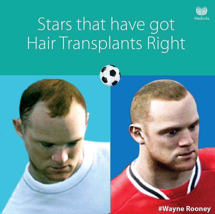 Football Stars got hair transplants right.   http://metro.co.uk/2011/08/10/wayne-rooney-receives-hair-transplant-in-fifa-12-110080/