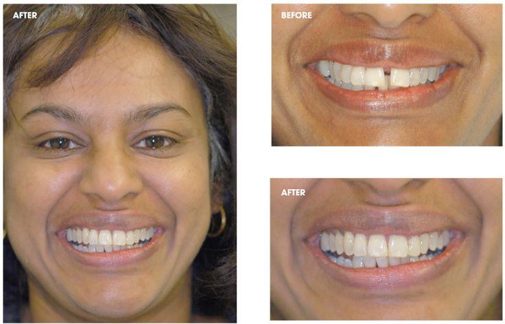 Clear braces diastema