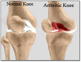 Get full bending of your arthritic knees after knee replacement. For more information email at drvenkat@kneeindia.com
