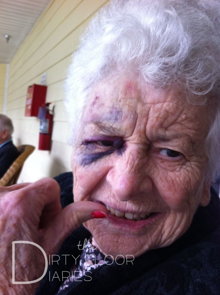 elderly abuse and neglect in nursing Gainesville nursing home abuse:  if you feel abuse and neglect is taking place or are an unwilling recipient of elderly care abuse and neglect,.