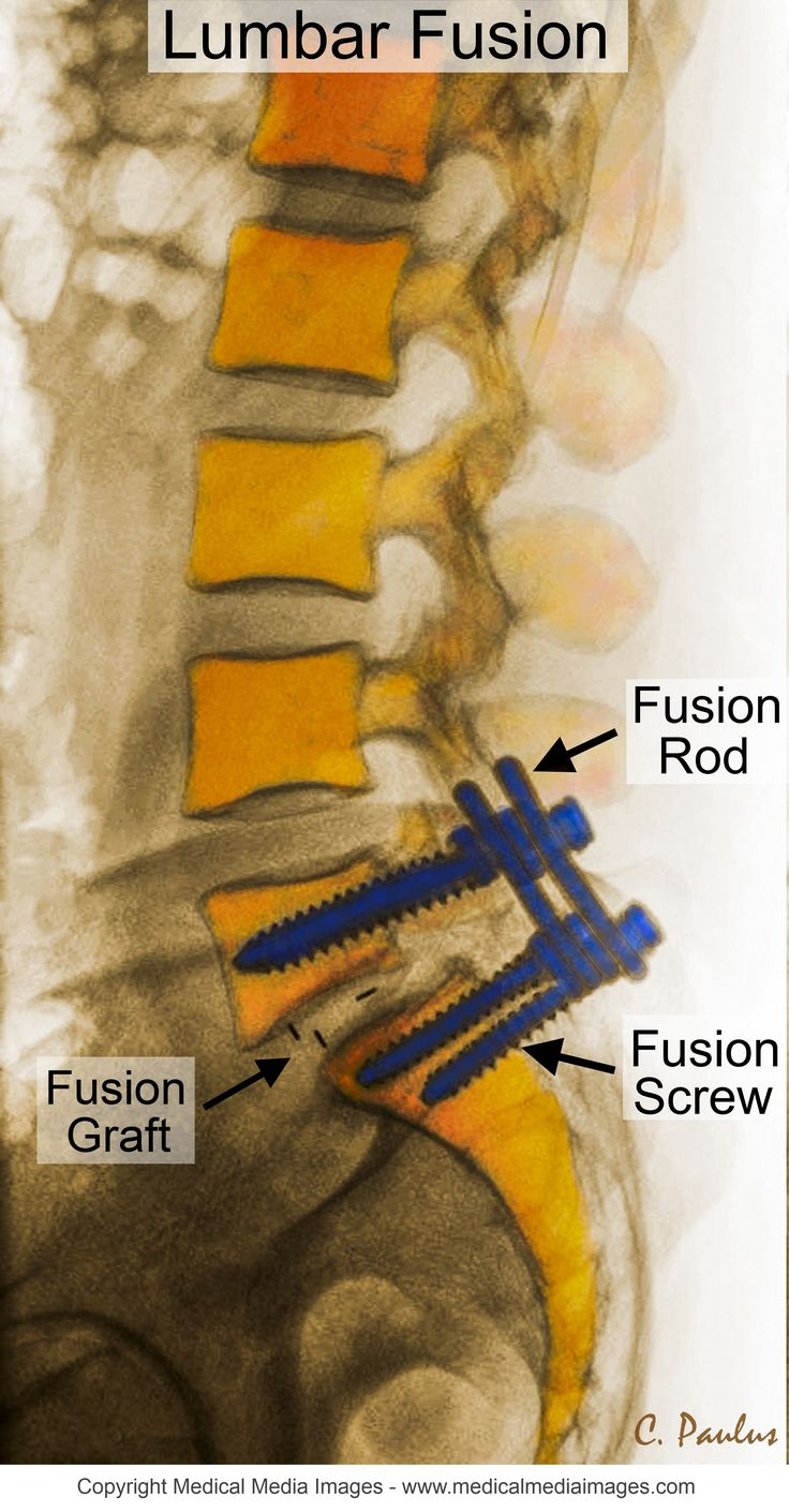 Side-view (lateral) Color X-Ray of a Lumbar Fusion with Annotations. Ideal for Websites and Publications. http://www.medicalmediaimages.com/lumbar-spine-anatomy-color-x-ray-image-lumbar-spine-fusion/311