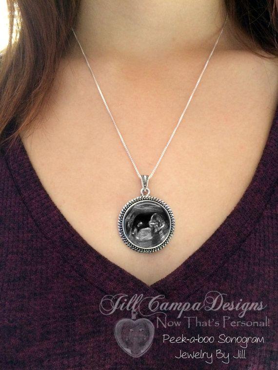 Sonogram Sonogram necklace Ultrasound by babysonogramjewelry