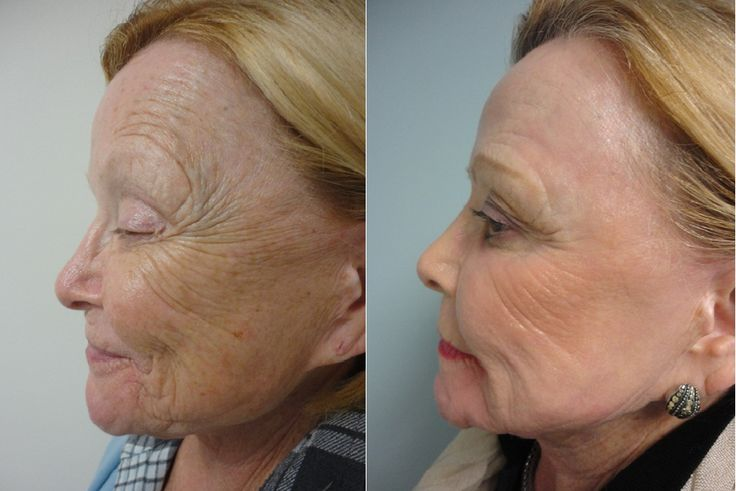 Brilliant Co2 Laser Skin Resurfacing
