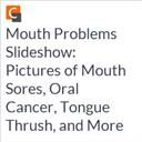 Mouth Problems Slideshow: Pictures of Mouth Sores, Oral Cancer, Tongue Thrush, and More