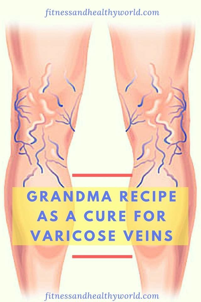 #recipe #varicose #veins #cure #health #remedy