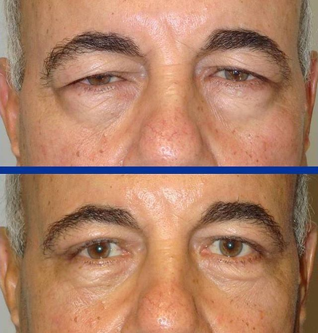 29 best images about Blepharoplasty Technique on Pinterest