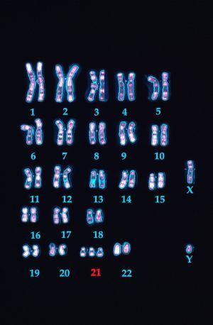 El Down excede el cromosoma 21 | Sociedad | EL PAÍS